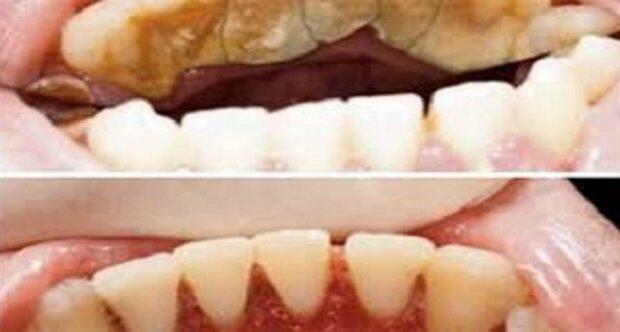 Tento způsob vám pomůže zbavit se zubního kamene z pohodlí domova. Stačí pouhé dvě minuty
