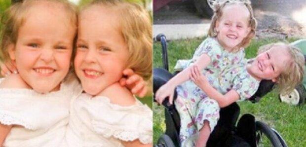Tato siamská dvojčata byla odloučena ve věku 4 let. Nyní mají 18 let. Jaký je jejich život?