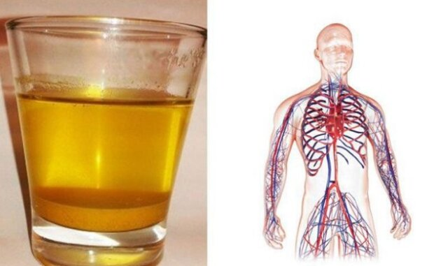 Každé ráno pijte vodu s kurkumou. Podívejte se proč