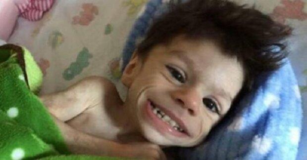 Žena adoptovala nesvéprávné dítě, které nikdo nechtěl. O rok později jej prakticky nepoznáte