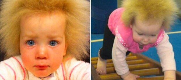 Jak vypadá dívka se syndromem nedotknutelných vlasů teď? Je jí 10 let