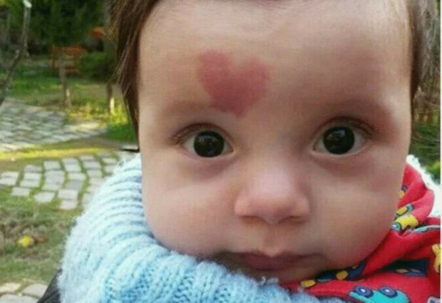 Jak teď vypadá chlapec narozený s mateřským znaménkem ve tvaru srdce?